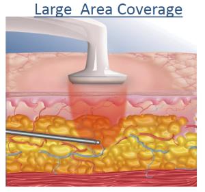 Aplicación de la RF a los tejidos subcutáneos mediante BodyTite