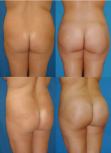 Gluteal Sculpting by Dr. C Mendieta