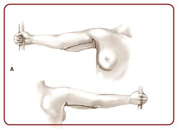 Cirugía de Contorno Post-Bariátrica