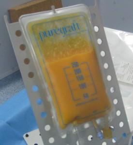 grasa filtrada mediante sistema Cytori