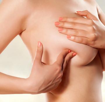 Alternativa autóloga al encapsulamiento mamario