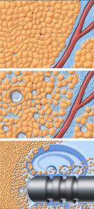 efecto de los ultrasonidos en el tejido graso