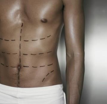 Marcación definición muscular
