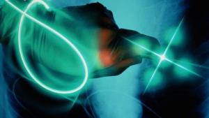 Fibra óptica  Lipoescultura por LASER