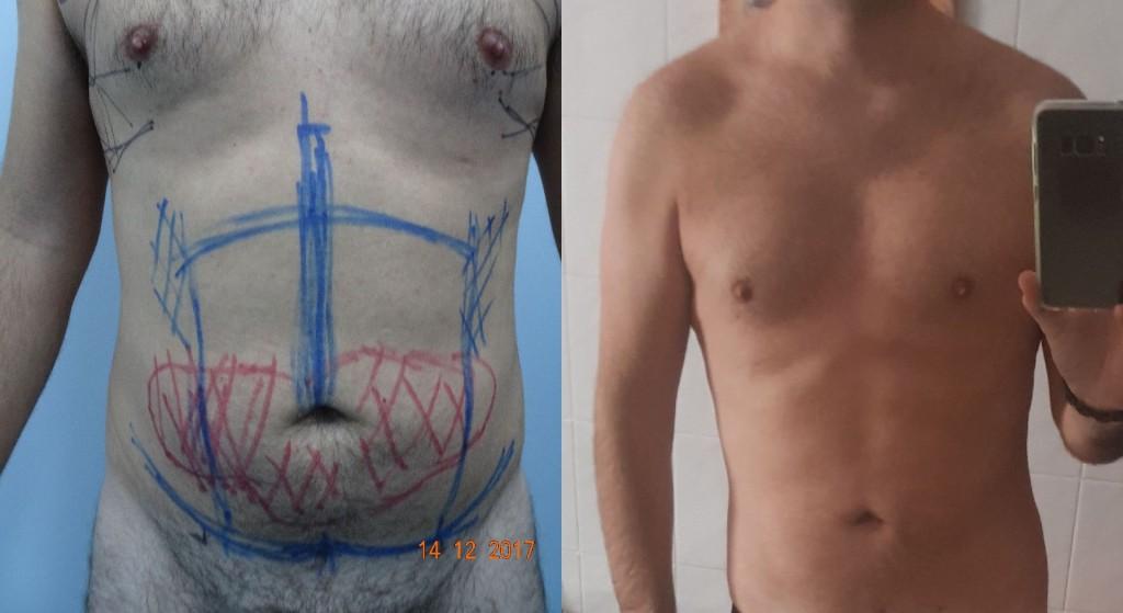 Resultado a los 10 días por fibrosis post-lipo mediante Lipo AR