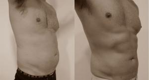 Foto de antes y despues abdomen