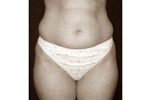 abdomen-antes-dr-armengou