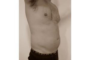 abdomen-antes-drarmengou-mate