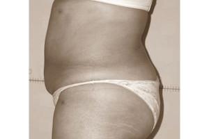 abdomen-despues-drarmengou