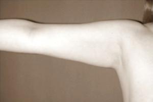 brazos-despues-dr-armengou