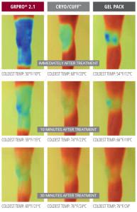 Imágenes termográficas que demuestran el frio profundo, homogéneo  y mantenido