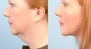FacialTite, Cortesia del Dr Mulholland, Canadá